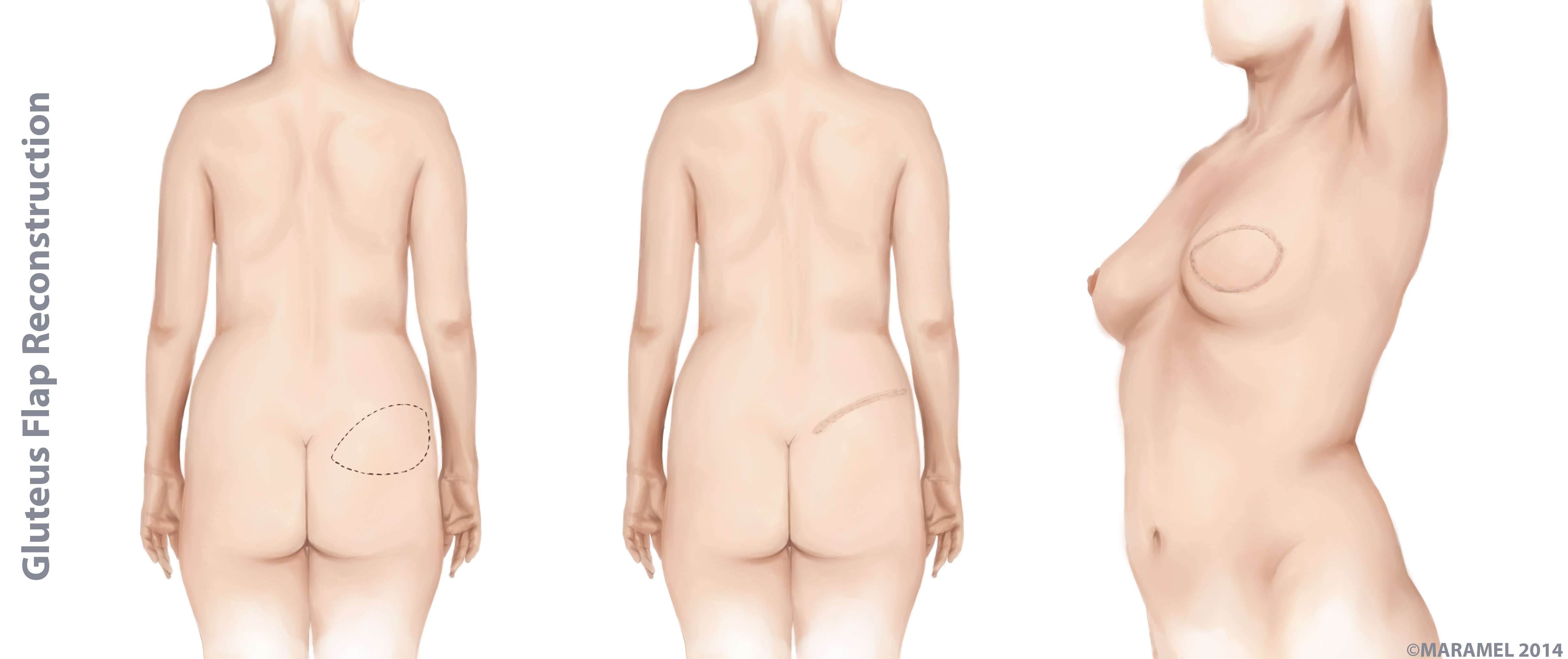 Necessary flap breast reconstruction with you